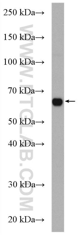 CDC14A Antibody in Western Blot (WB)