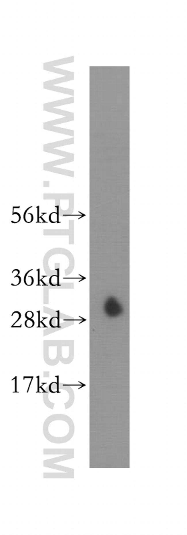 CA7 Antibody in Western Blot (WB)