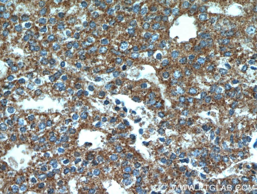 NEDD4L Antibody in Immunohistochemistry (Paraffin) (IHC (P))