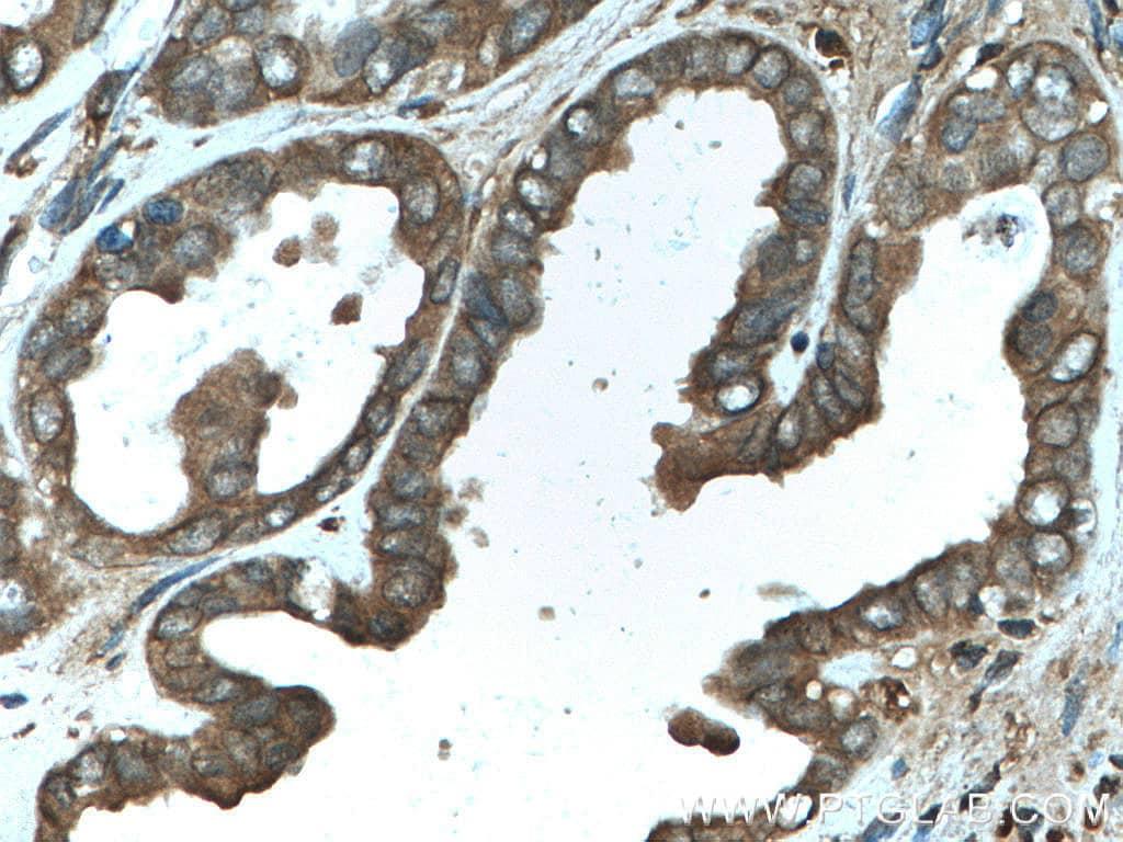 LARP1 Antibody in Immunohistochemistry (Paraffin) (IHC (P))