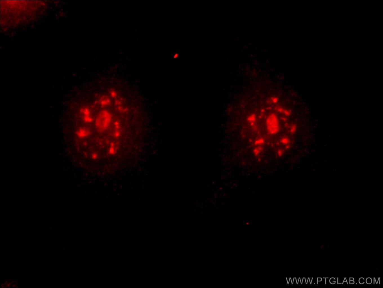 DMC1 Antibody in Immunofluorescence (IF)