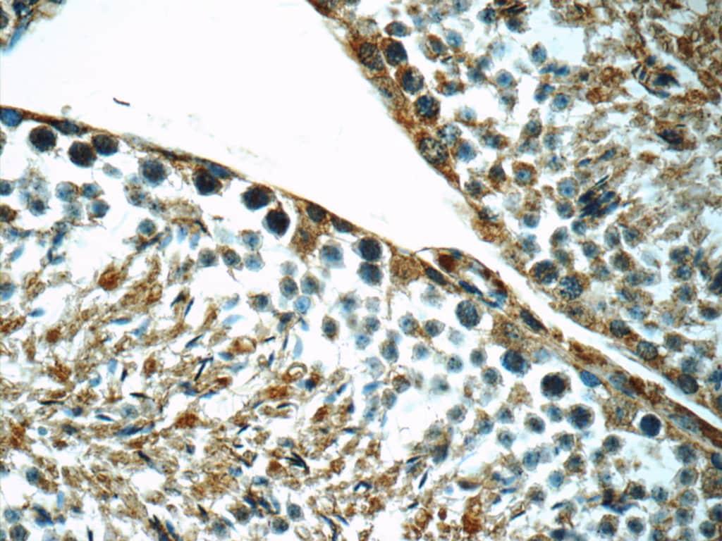 LSS Antibody in Immunohistochemistry (Paraffin) (IHC (P))