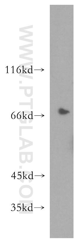 SLC9A9 Antibody in Western Blot (WB)