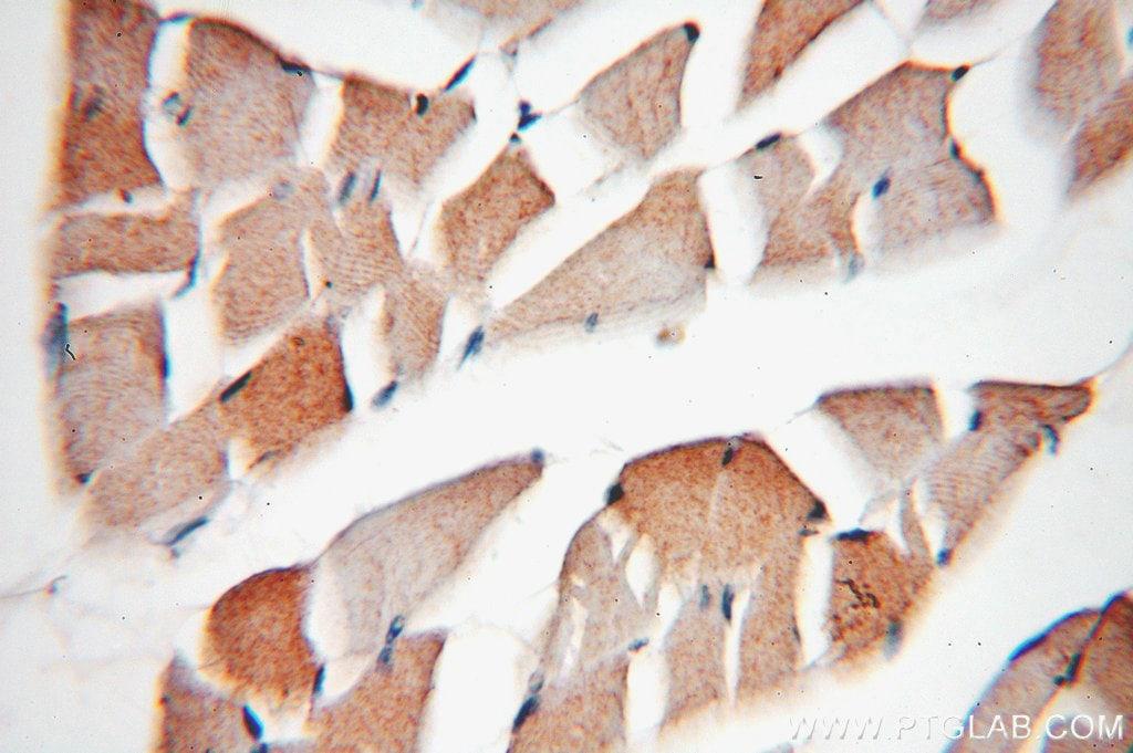 Phospholemman/FXYD1 Antibody in Immunohistochemistry (Paraffin) (IHC (P))