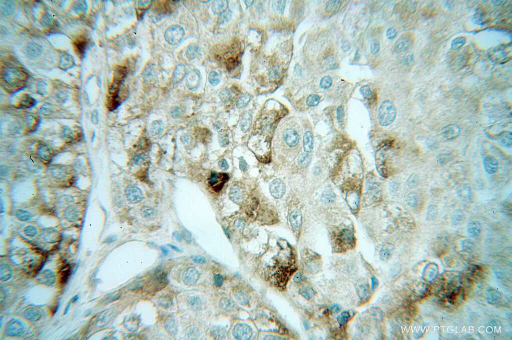 AUP1 Antibody in Immunohistochemistry (Paraffin) (IHC (P))
