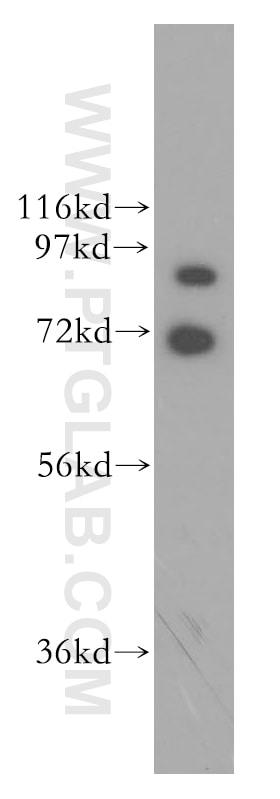 GRK3 Antibody in Western Blot (WB)