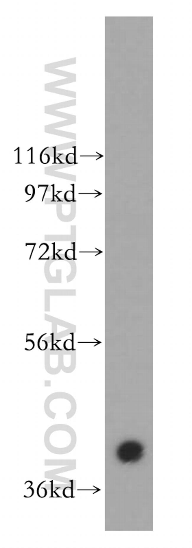CACNG3 Antibody in Western Blot (WB)