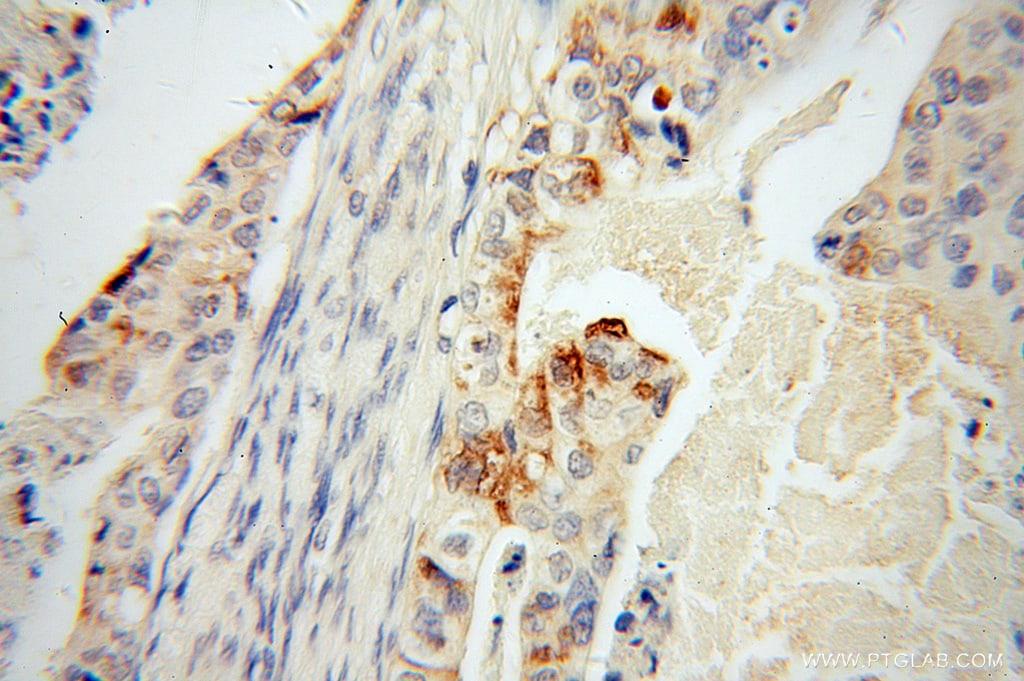 Trefoil factor 1 Antibody in Immunohistochemistry (Paraffin) (IHC (P))