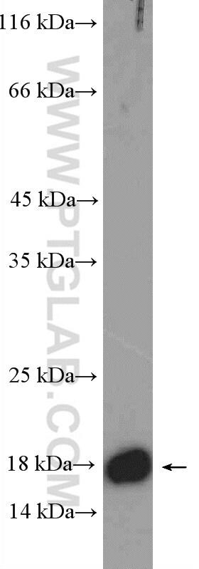 GADD45A Antibody in Western Blot (WB)