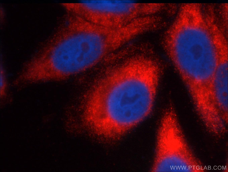 FMRP Antibody in Immunofluorescence (IF)