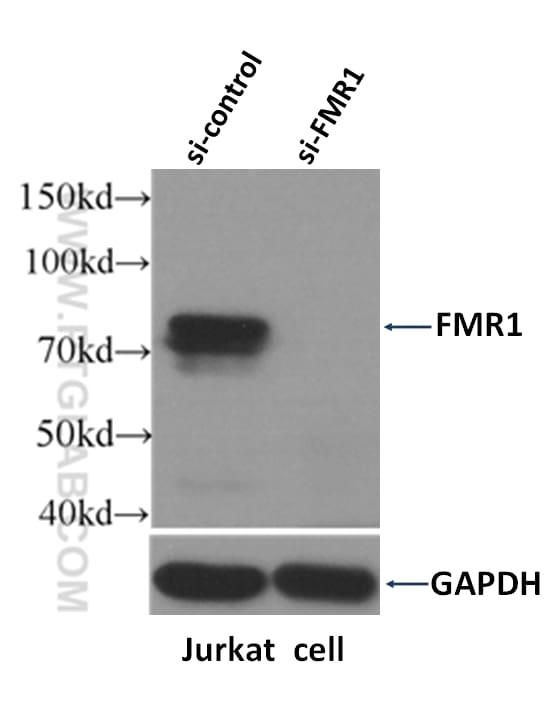 FMRP Antibody in Western Blot (WB)