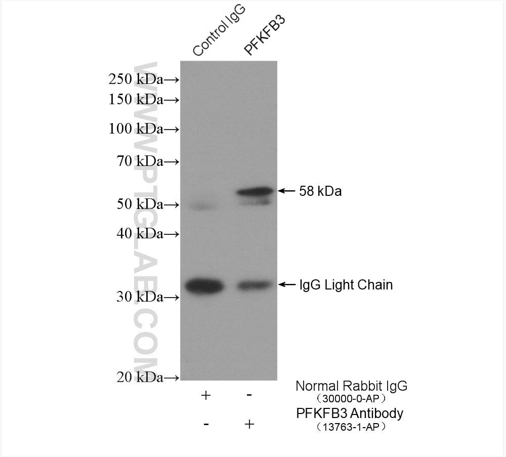 PFKFB3 Antibody in Immunoprecipitation (IP)