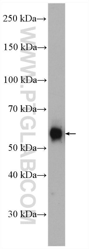 PFKFB3 Antibody in Western Blot (WB)