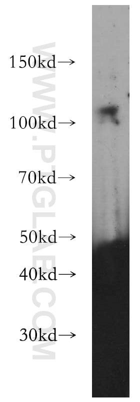DZIP1 Antibody in Western Blot (WB)