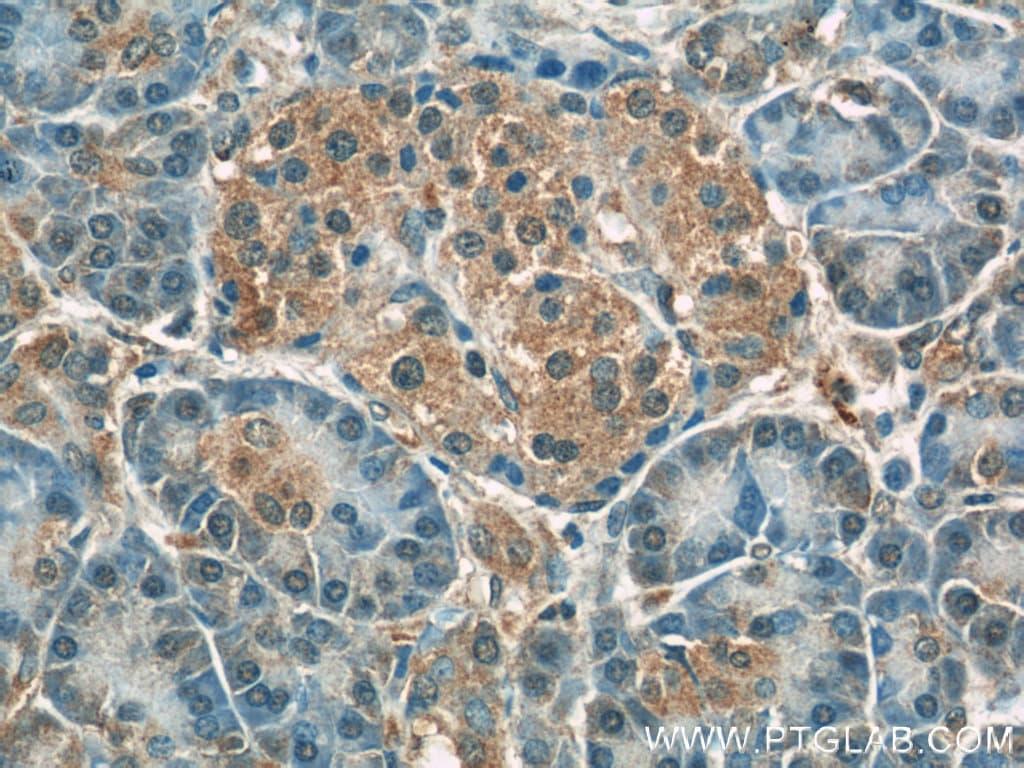 Radixin Antibody in Immunohistochemistry (Paraffin) (IHC (P))