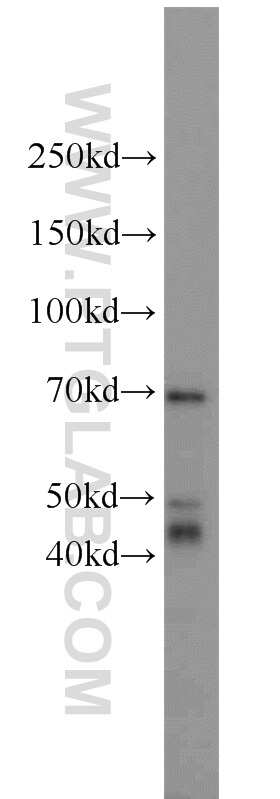 DARS2 Antibody in Western Blot (WB)