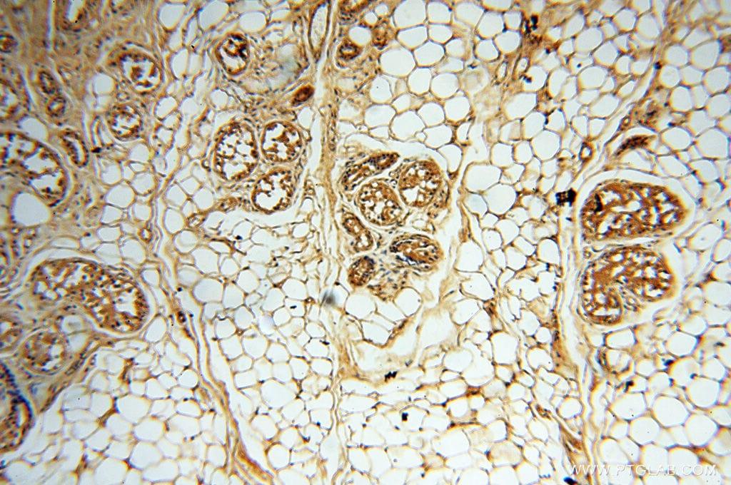 DIXDC1 Antibody in Immunohistochemistry (Paraffin) (IHC (P))
