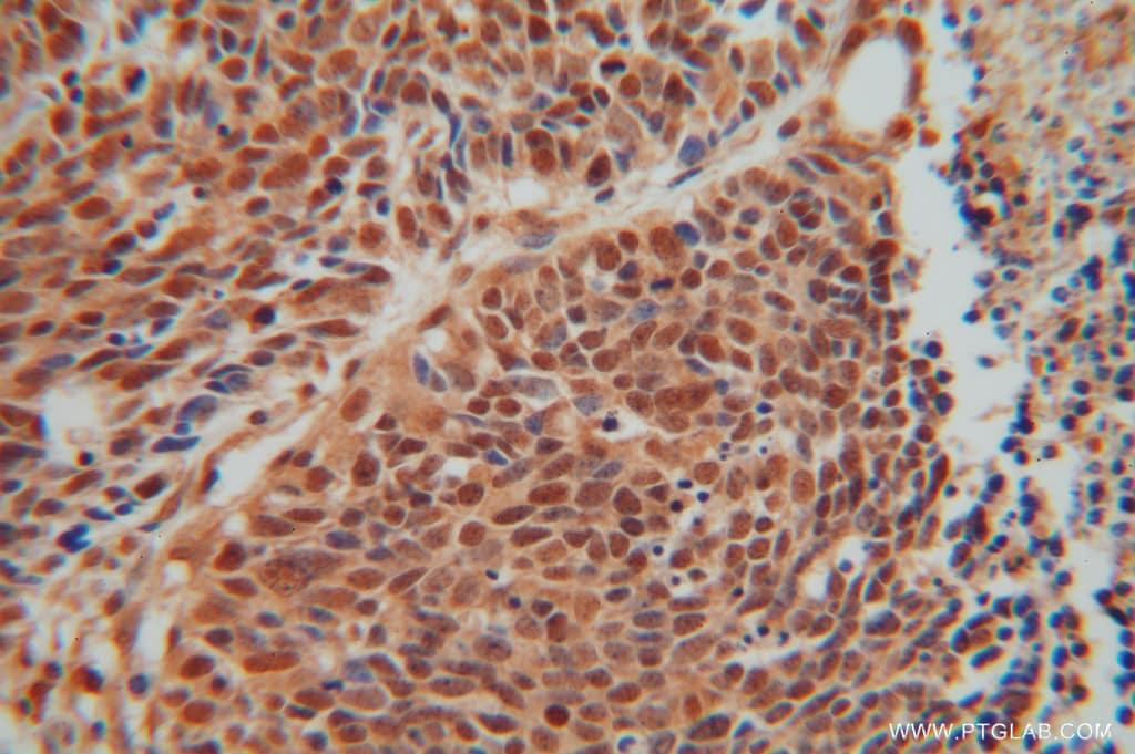 SEPT7 Antibody in Immunohistochemistry (Paraffin) (IHC (P))
