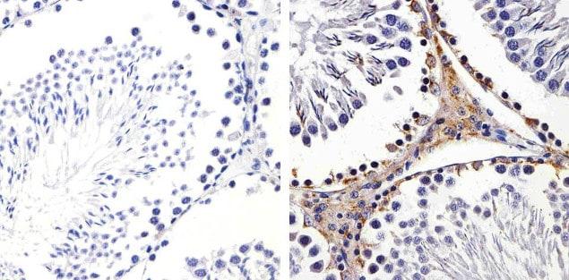 Connexin 43 Antibody in Immunohistochemistry (Paraffin) (IHC (P))