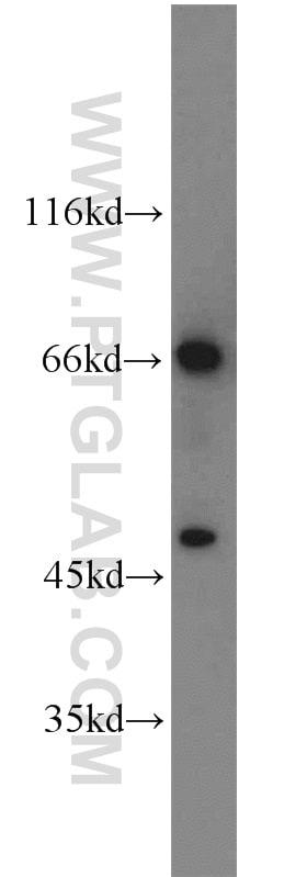 TCF7L2 Antibody in Western Blot (WB)