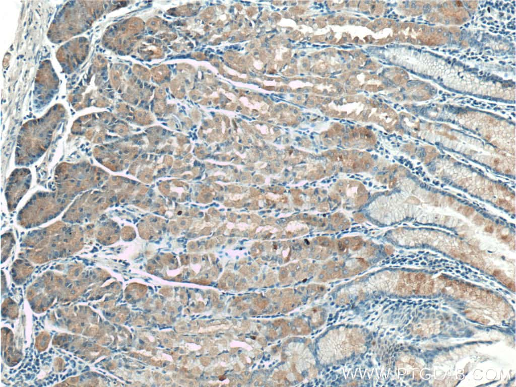 TAC1 Antibody in Immunohistochemistry (Paraffin) (IHC (P))