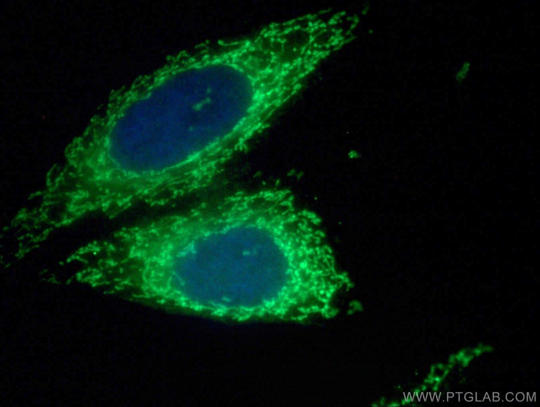 TIMM44 Antibody in Immunofluorescence (IF)