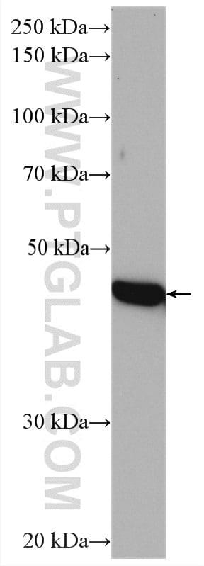 TIMM44 Antibody in Western Blot (WB)