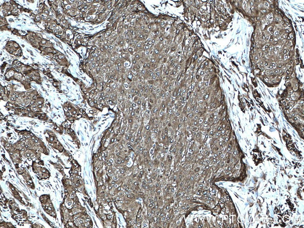 AEG-1/MTDH Antibody in Immunohistochemistry (Paraffin) (IHC (P))