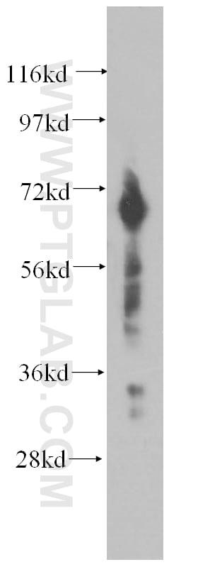 DCP1B Antibody in Western Blot (WB)