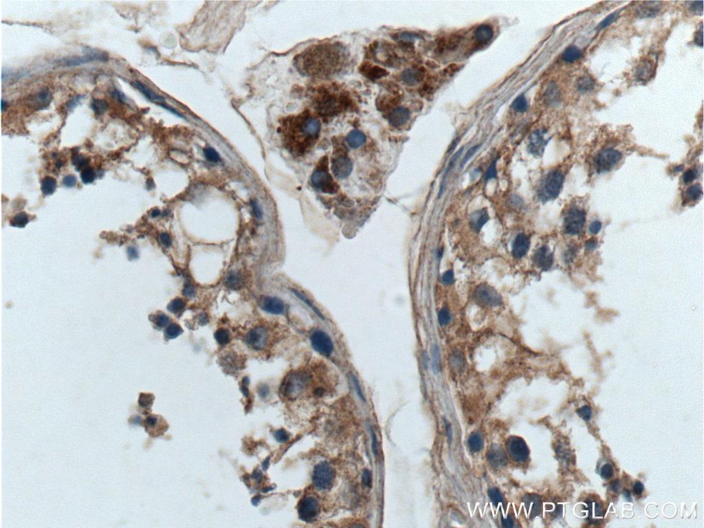 GNAQ Antibody in Immunohistochemistry (Paraffin) (IHC (P))