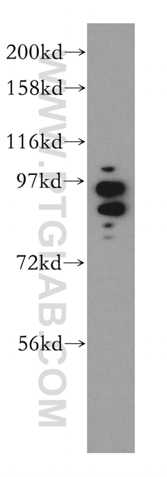 PDE8A Antibody in Western Blot (WB)