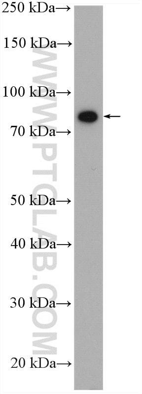 IFT88 Antibody in Western Blot (WB)