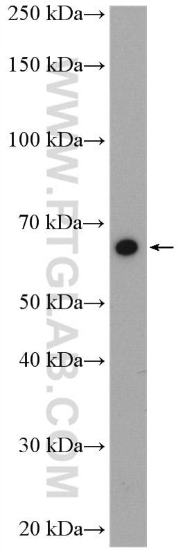 Cryptochrome 2 Antibody in Western Blot (WB)
