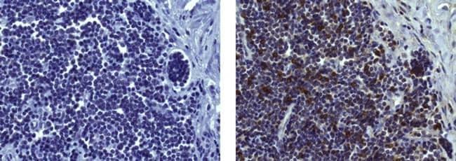 CD8a Antibody in Immunohistochemistry (Paraffin) (IHC (P))