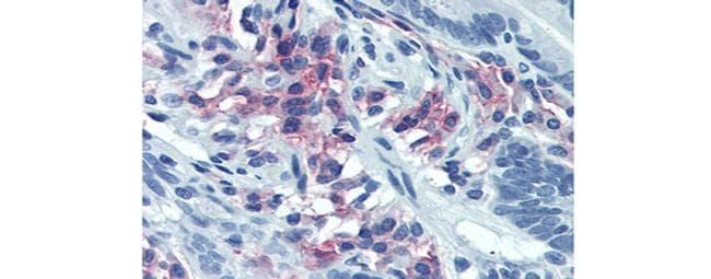 CD38 Antibody in Immunohistochemistry (Paraffin) (IHC (P))