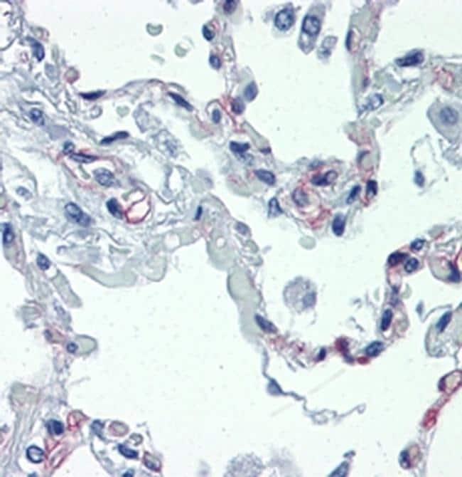 CD93 (AA4.1) Antibody in Immunohistochemistry (Paraffin) (IHC (P))