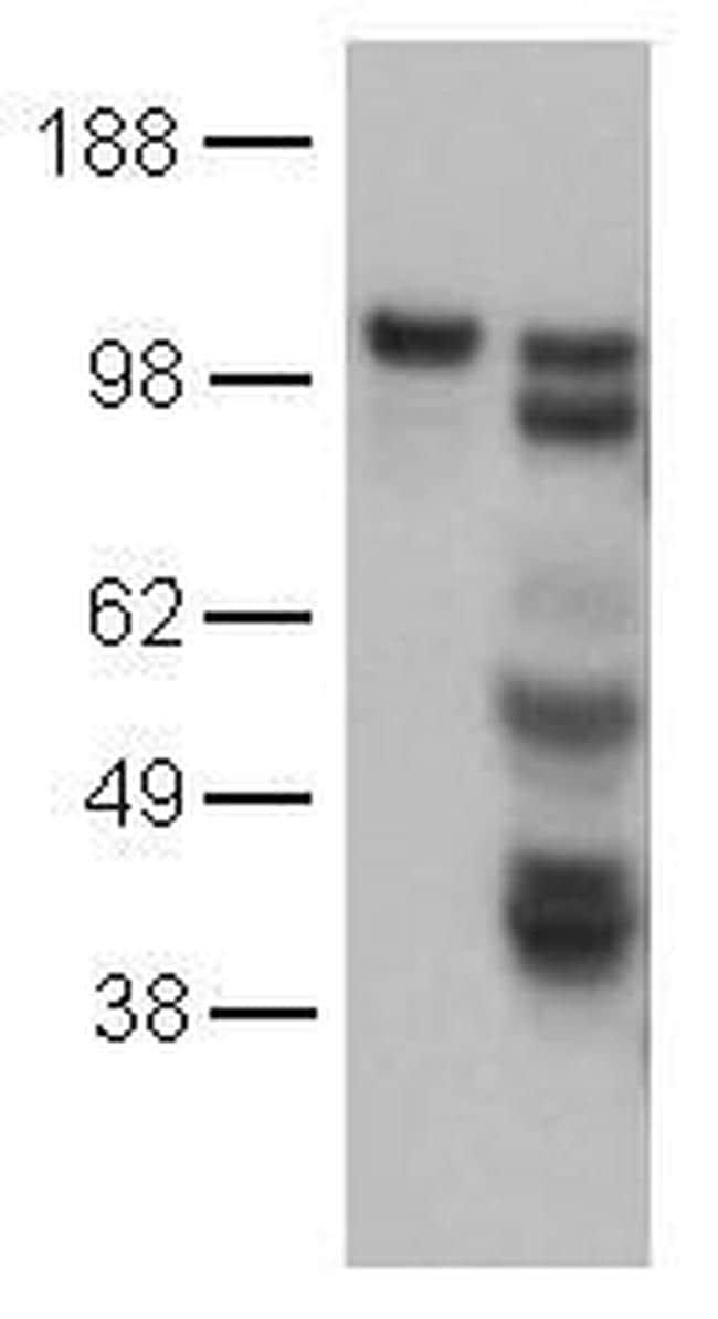 CD144 (VE-cadherin) Antibody in Western Blot (WB)