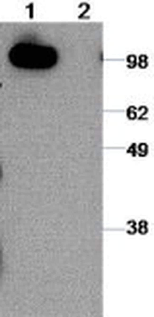 CD324 (E-Cadherin) Antibody in Western Blot (WB)