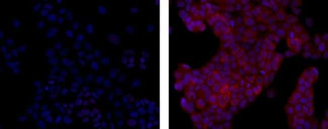 Mouse IgG1 kappa Isotype Control in Immunocytochemistry (ICC)