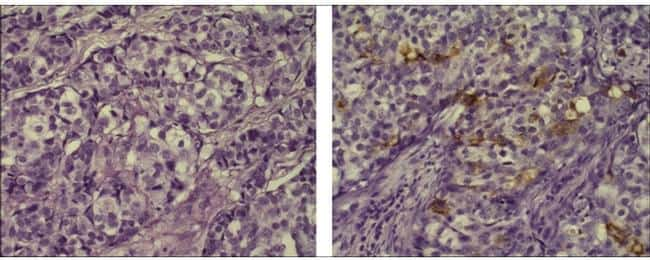 Mouse IgG1 kappa Isotype Control in Immunohistochemistry (Paraffin) (IHC (P))