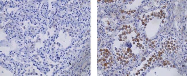 Mouse IgG2a kappa Isotype Control in Immunohistochemistry (Paraffin) (IHC (P))