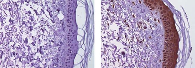 Mouse IgG2b kappa Isotype Control in Immunohistochemistry (Paraffin) (IHC (P))