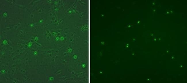 Myogenin Antibody in Immunocytochemistry (ICC)