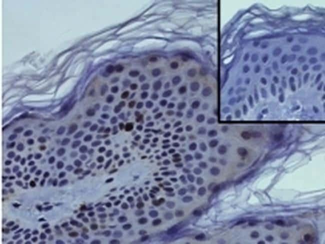 Ki-67 Antibody in Immunohistochemistry (Paraffin) (IHC (P))