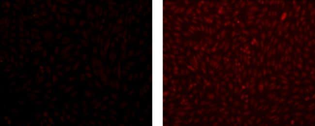 MASH1 Antibody in Immunocytochemistry (ICC)