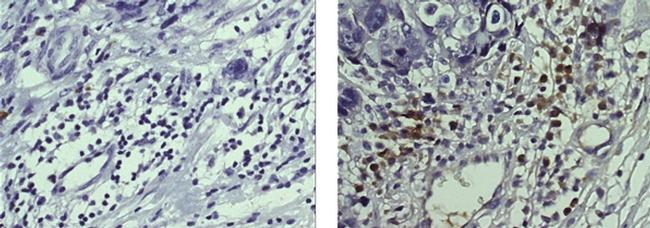 Trop2 (EGP-1) Antibody in Immunohistochemistry (Paraffin) (IHC (P))