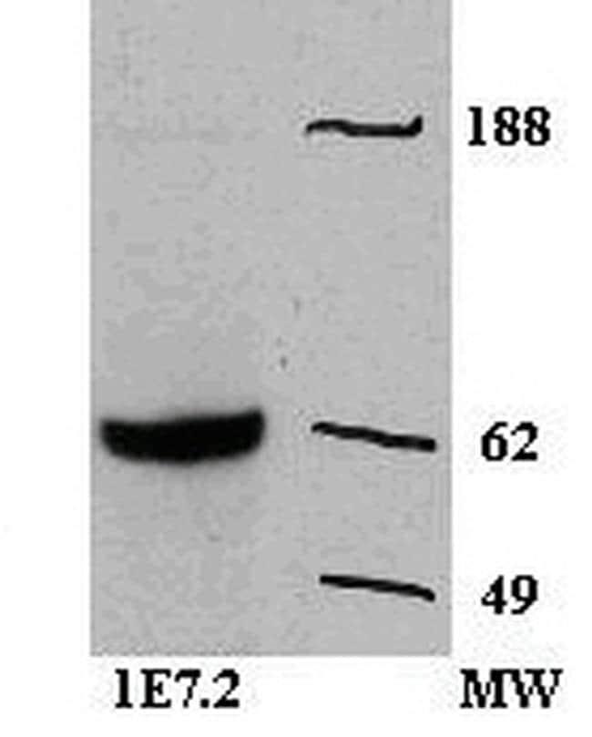 Zap-70 Antibody in Western Blot (WB)