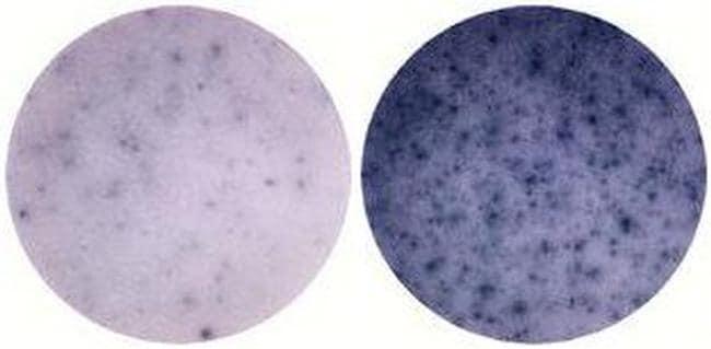 IL-6 Antibody in ELISA (ELISA)