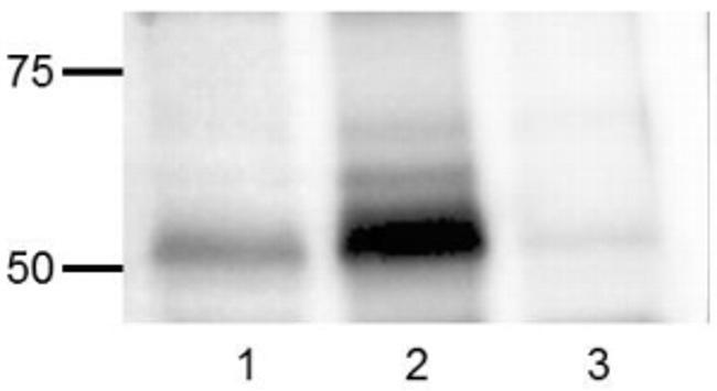 Phospho-SRC (Tyr418) Antibody in Western Blot (WB)