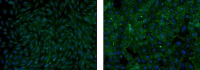 PSA-NCAM Antibody in Immunocytochemistry (ICC)